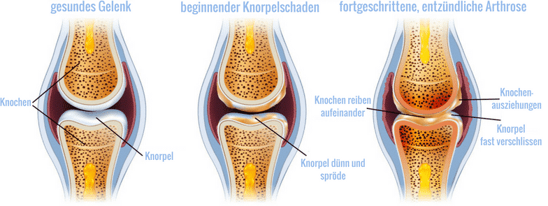 Die Entstehung einer entzündlichen Arthrose im Gelenk