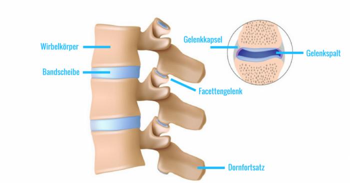 Arthrose im Rücken