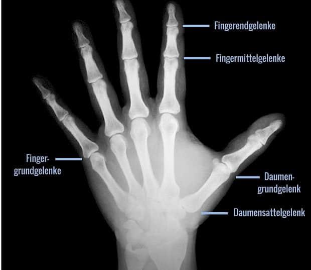 Anatomie der Hand: die Fingergelenke