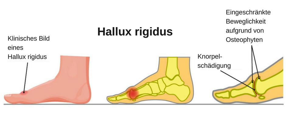 Anatomische Darstellung eines Hallux rigidus (Arthrose des Großzehengrundgelenks)